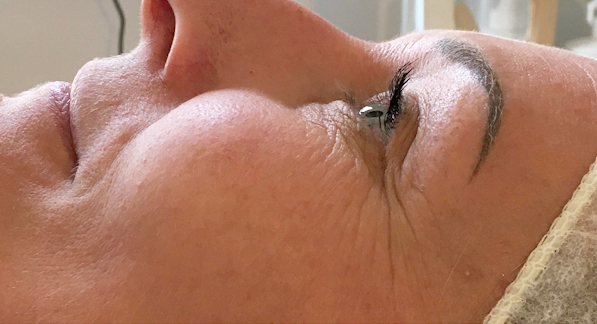 In You Beauty Coolift Before & After Image of Treatment
