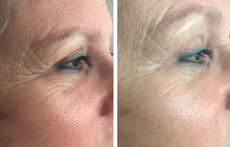 In You Beauty Coolifting Gun Before and After Images